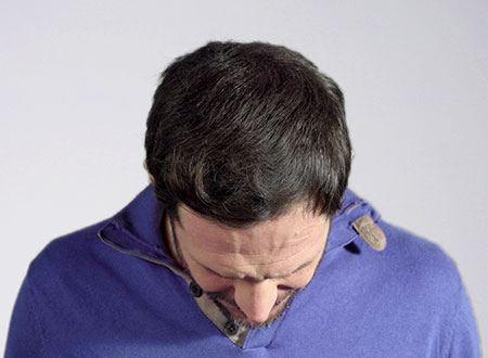 calvitie homme après la poudre de cheveux