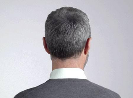cheveux clairsemés après la poudre de cheveux