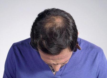 calvitie homme avant la poudre de cheveux