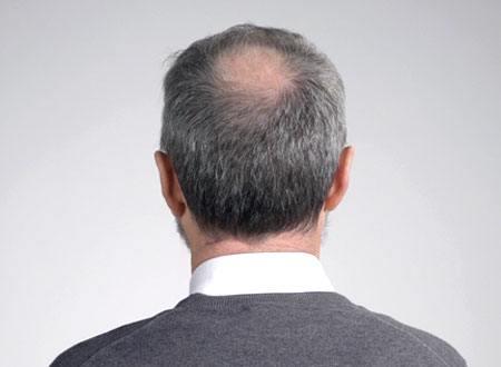 cheveux clairsemés avant la poudre de chevueux